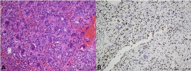骨原发肿瘤诊断策略概述(六)