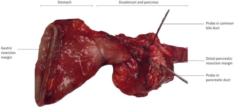 Whipple切除术标本(胰十二指肠切除术标本)取材指南和记录模板
