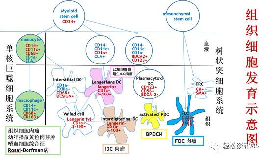 组织细胞起源疾病(2)——肿瘤性病变(LCH)
