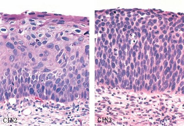 鳞状上皮细胞cin1_连载二子宫颈肿瘤及非肿瘤性病变资讯华夏