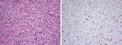 脊索瘤临床病理学特征