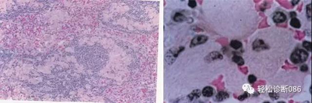 组织细胞起源疾病(23)——增生性病变(GD)