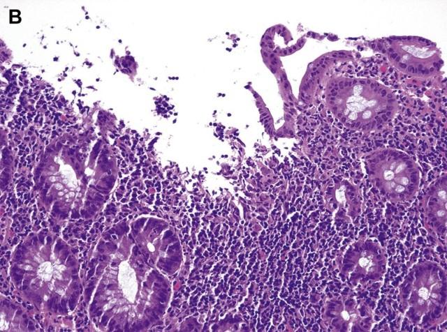 """活检标本中的""""慢性结肠炎""""的临床病理学特征及鉴别诊断(二)"""