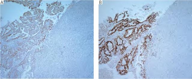 去分化子宫内膜癌两例