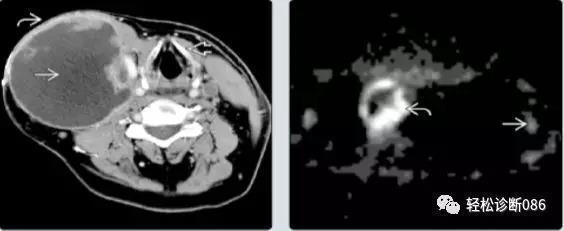 组织细胞起源疾病(6)——肿瘤性病变(HS)