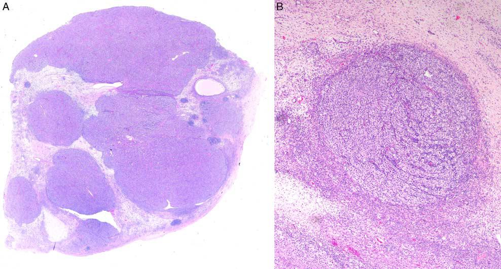 文献精读-卵巢无性细胞瘤(二)