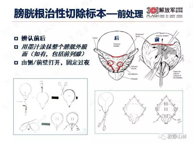病理标本检查和取材规范--尿路系统篇