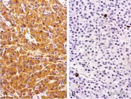 浆细胞相关肿瘤(5)