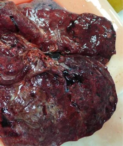 类似粟粒性结核的类鼻疽一例