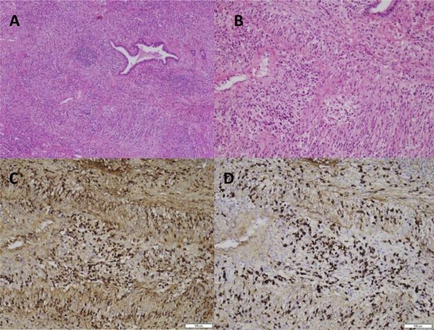 肺IgG4相关疾病的诊断挑战