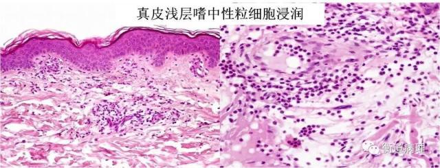 皮肤组织病理学体系化课程学习笔记(三)