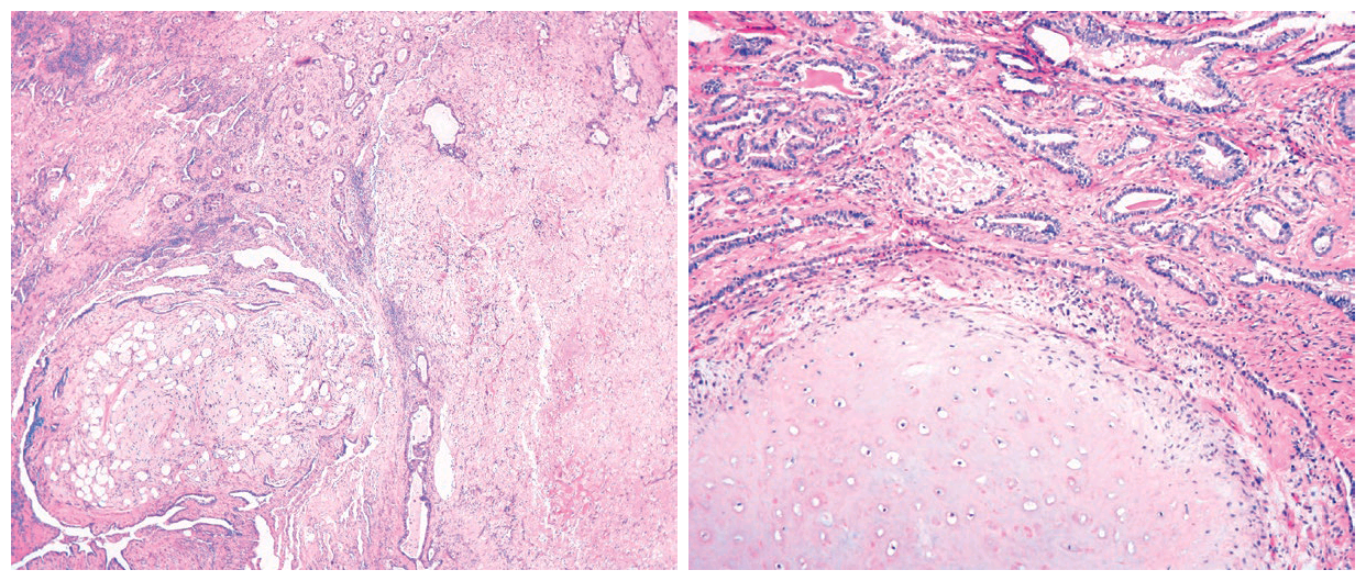 临床影像相结合学习具有特殊表现的肺部错构瘤