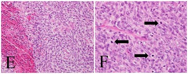 发生于子宫内膜息肉的内膜间质肉瘤一例