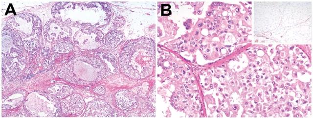 说说乳腺小叶原位癌-(一)概述及组织学