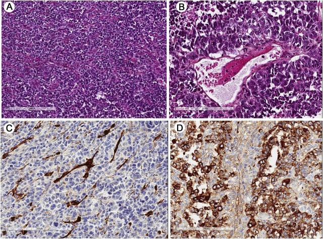 卵巢神经内分泌癌一例