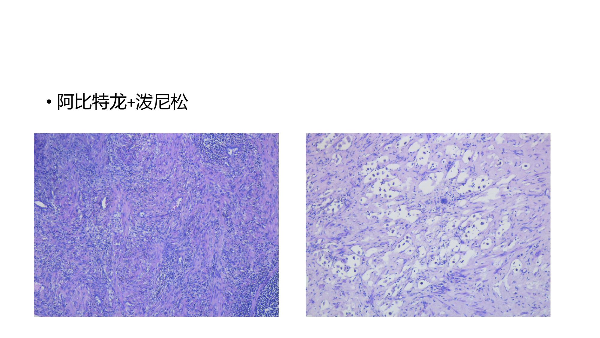 前列腺腺癌新辅助治疗的病理学评估