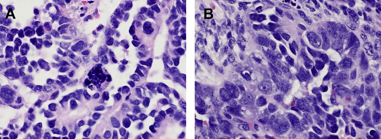 肾母细胞瘤的病理诊断与预后评估挑战(1)