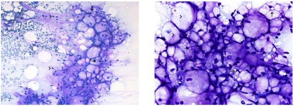 黏液性脂肪母细胞瘤:披着狼皮的羊