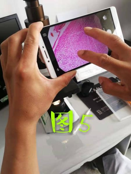 病理科工作札记(三十六)如何用手机拍出满意的组织学照片