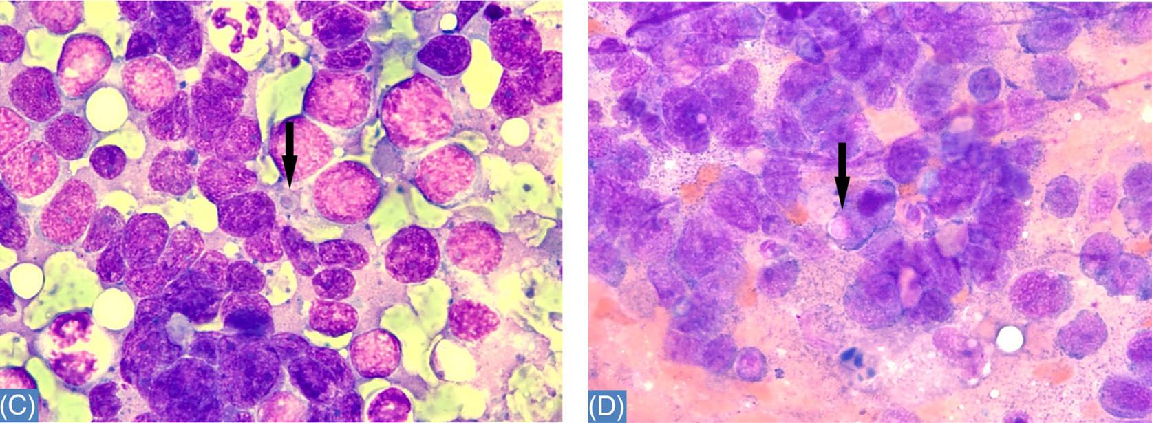 读文献,学病理-Merkel细胞癌的细胞学表现