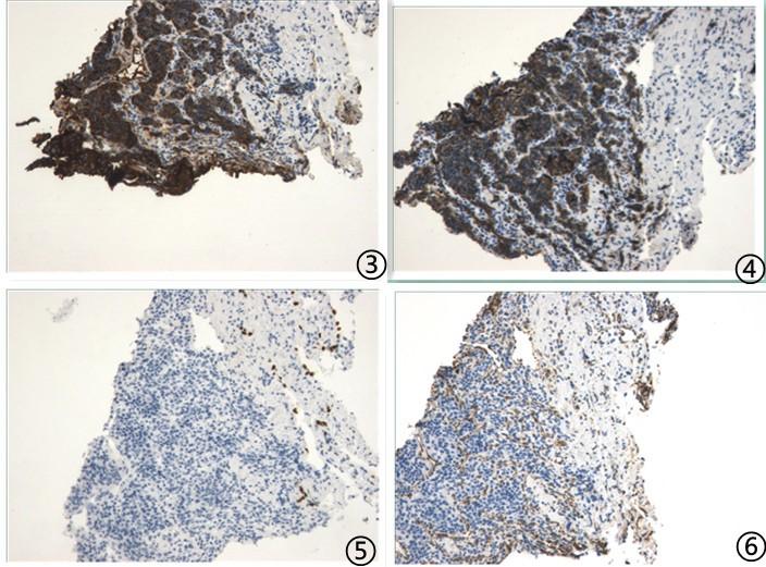 肺转移性肿瘤汇总