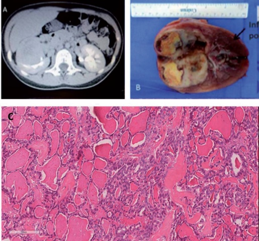 一名10岁女孩患甲状腺样滤泡状肾细胞癌