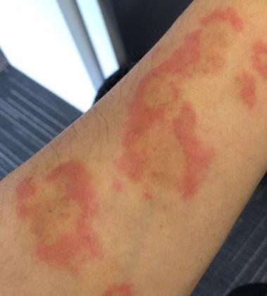 甲醛到底有多毒?作为病理人,究竟如何防护甲醛呢?