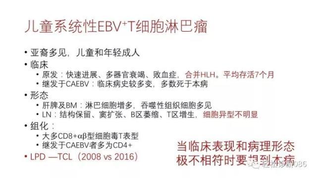 EBV相关T/NK细胞增殖性疾病