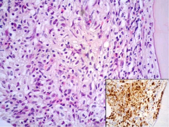 """不一样的""""黏膜慢性炎""""-胃肠道肥大细胞增多症"""