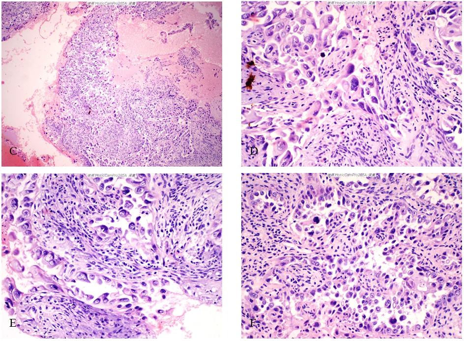 有奖读片病例整理:病例7 子宫内膜浆液性癌