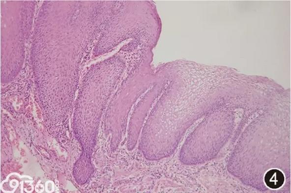 胃食管反流病的病理诊断