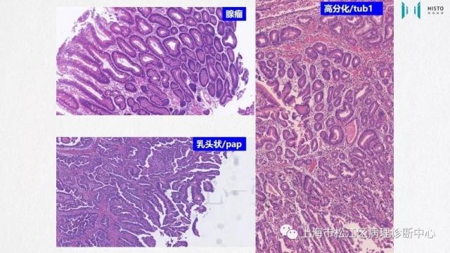 上消化道早癌病理诊断中的困惑及基本对策回顾