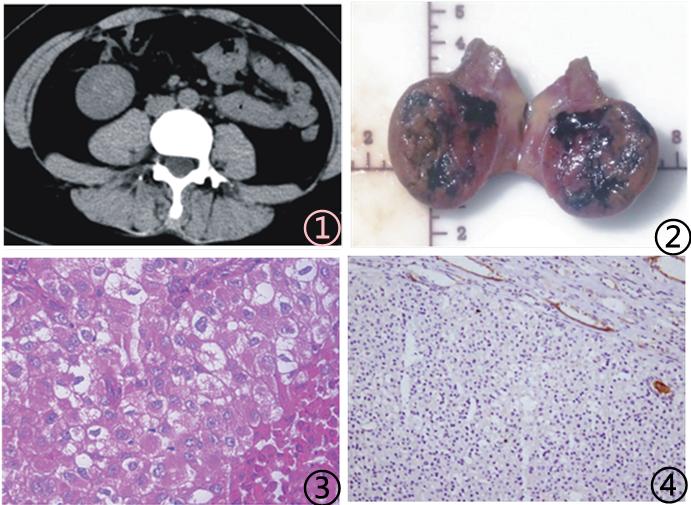 琥珀酸脱氢酶缺陷型肾细胞癌临床病理学特征