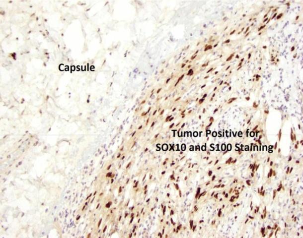 罕见癌:结直肠神经鞘瘤