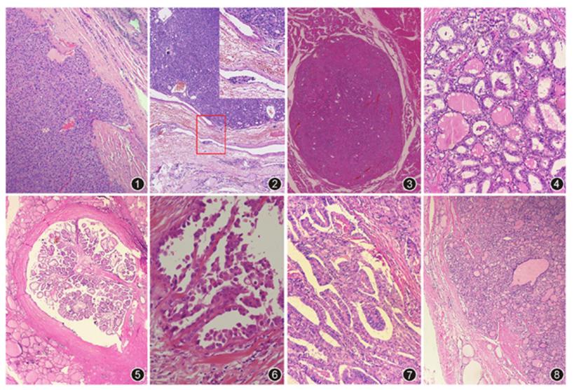 2017版WHO甲状腺肿瘤分类解读