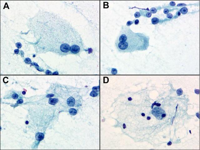 """【投稿】表现为""""气球样""""细胞的转移性恶性黑色素瘤"""