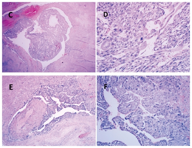 妊娠滋养细胞肿瘤(一)