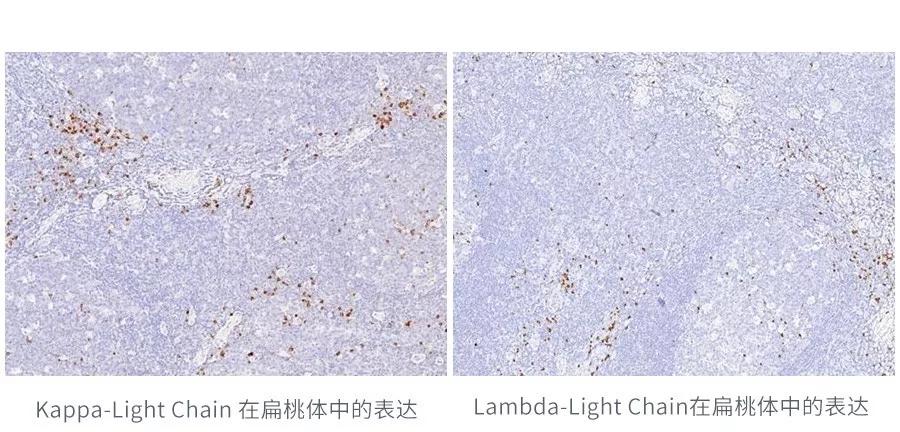 κ(Kappa-Light Chain)和λ(Lambda-Light Chain) 两兄弟