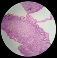 【投稿】地雷一样的存在|胃肠道印戒细胞癌诊断小结