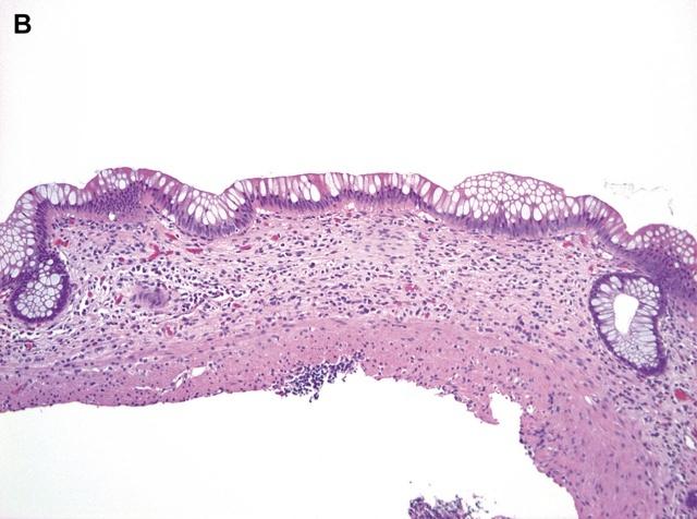 溃疡性结肠炎