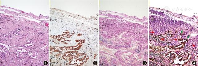 改良免疫组织化学广谱细胞角蛋白联合弹力纤维染色法在肺癌胸膜侵犯诊断中的应用