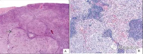 组织细胞起源疾病(9)——肿瘤性病变(FDCS)