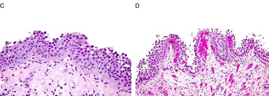 最新文献学习-泌尿生殖病理学会对某些问题的重要更新(八)