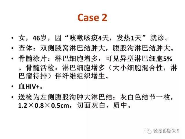 HIV/AIDS相关性LPDHIV感染相关淋巴瘤病例分析