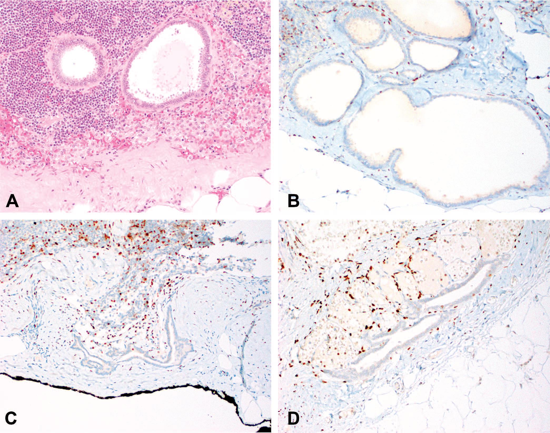 转移性乳腺癌与输卵管子宫内膜异位鉴别的利器-GATA3