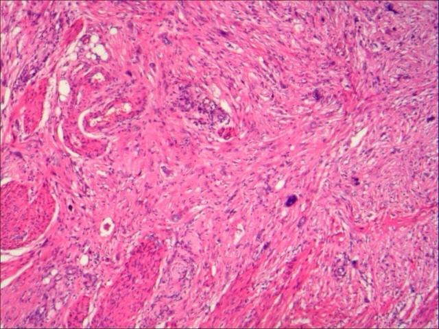 经典病例分享 肌纤维母细胞瘤