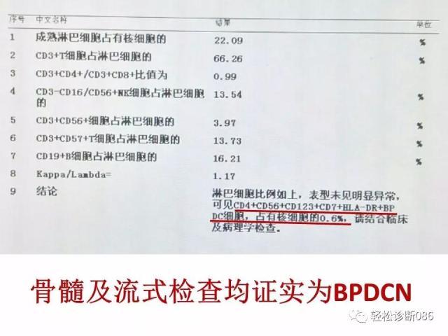 BPDCN病例分享