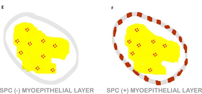 乳腺乳头状肿瘤概览(五)