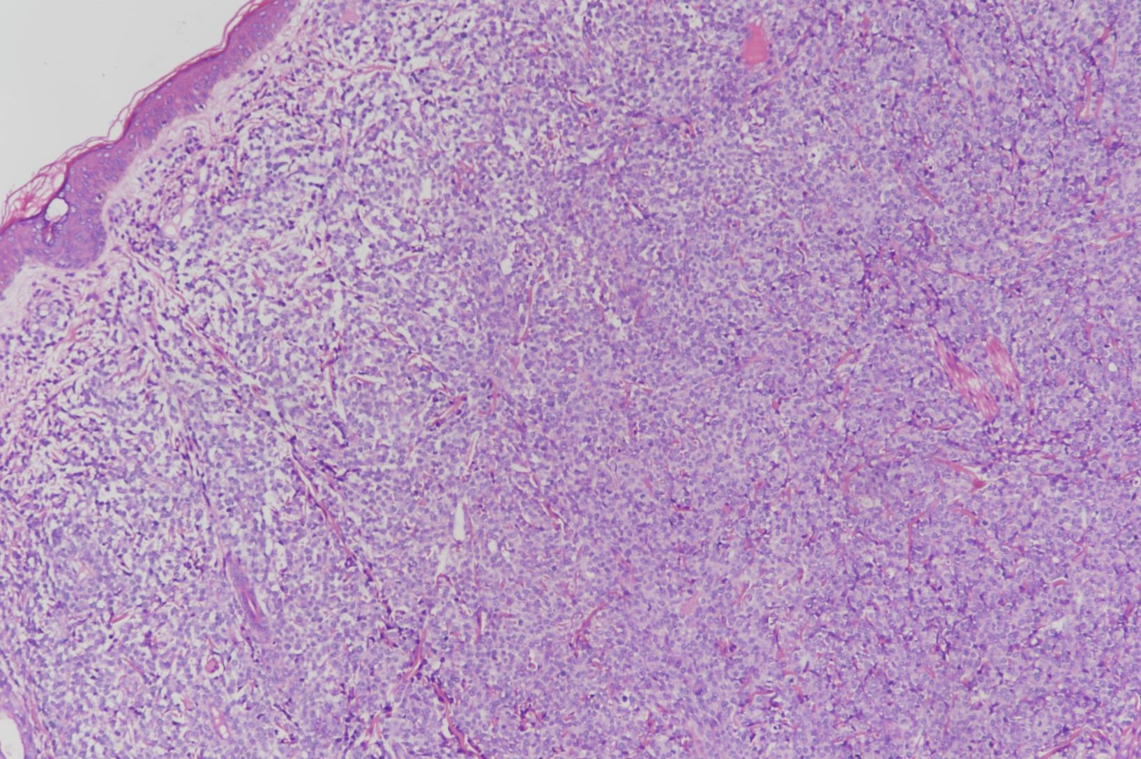 儿童髓系肉瘤的临床病理学特征