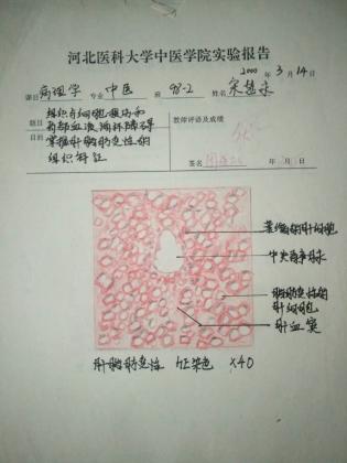 病理科工作札记(十一)知常达变 探微知著 上